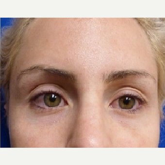 25-34 year old woman treated with Restylane after 3715427