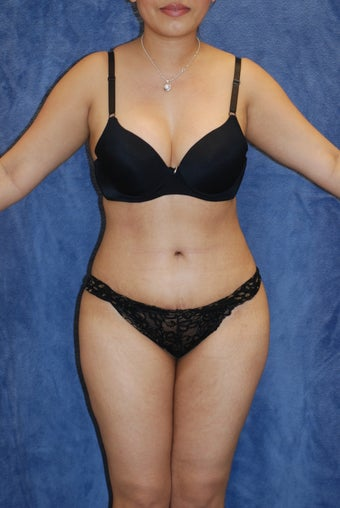 25-34 year old woman treated with Tummy Tuck after 1820863