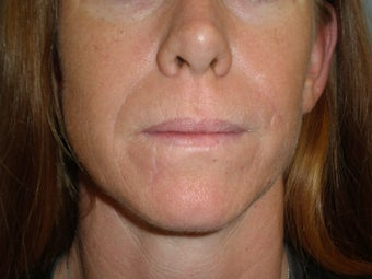 37 Y.O Woman Who Has Facial Scarring Due To a Dog Bite. after 1454293