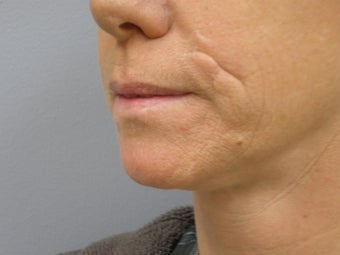 37 Y.O Woman Who Has Facial Scarring Due To a Dog Bite. 1454293