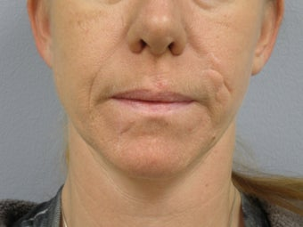 37 Y.O Woman Who Has Facial Scarring Due To a Dog Bite. before 1454293