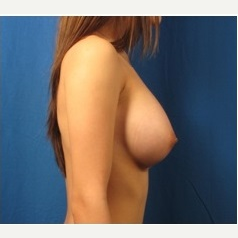 18-24 year old woman treated with Breast Implants after 3326785