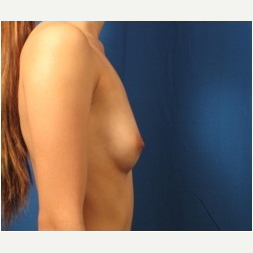 18-24 year old woman treated with Breast Implants before 3326785