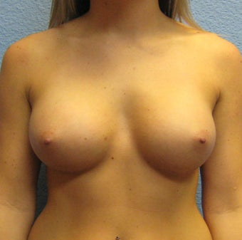 Breast Augmentation, Breast Implants after 1290480