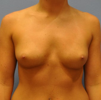 Breast Augmentation, Breast Implants before 1290480