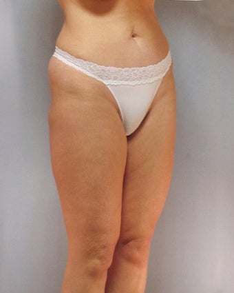 Liposuction 1232074