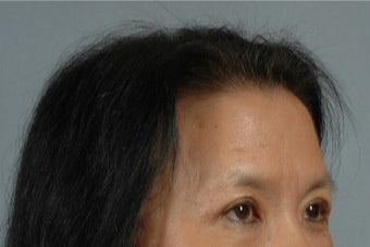45-54 year old woman treated with Asian Eyelid Surgery after 3615945