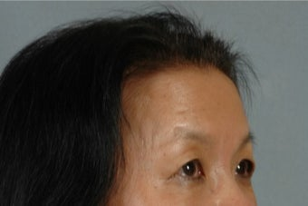 45-54 year old woman treated with Asian Eyelid Surgery before 3615945