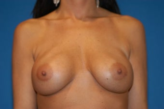 28-38 year old female, Breast lift and Implant Exchange with Silicone.  RT 600cc LT 600cc. Allergan. before 106526