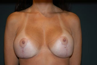 28-38 year old female, Breast lift and Implant Exchange with Silicone.  RT 600cc LT 600cc. Allergan. after 106526
