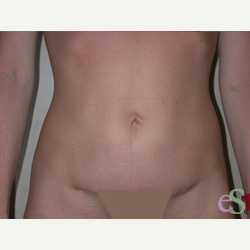 41 year old woman treated with Tummy Tuck after 3484822