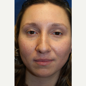 35-44 year old woman treated with Rhinoplasty before 3643524