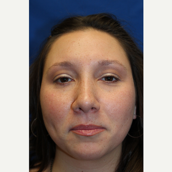 35-44 year old woman treated with Rhinoplasty after 3643524