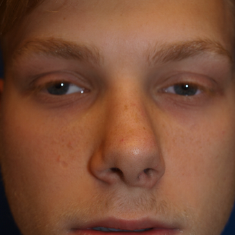18-24 year old man treated with Rhinoplasty before 3326299