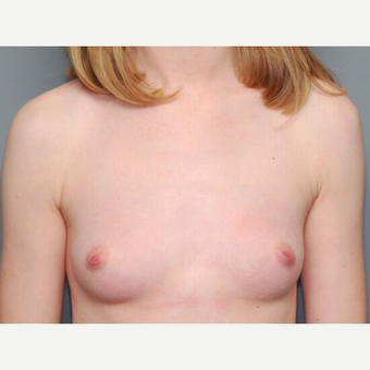 18-24 year old woman treated with Breast Augmentation before 3066202