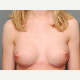 18-24 year old woman treated with Breast Augmentation after 3066202