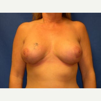 35-44 year old woman treated with Breast Reconstruction after 3009118