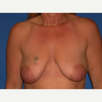 35-44 year old woman treated with Breast Reconstruction before 3009118