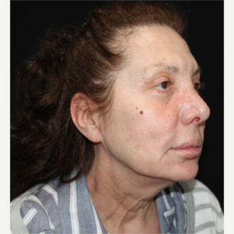 65-74 year old woman treated with Facelift before 3498758