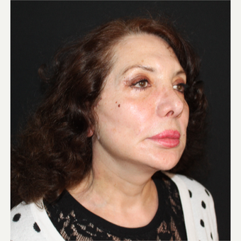 65-74 year old woman treated with Facelift after 3498758