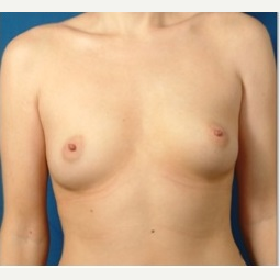 25-34 year old woman treated with Breast Implants before 3326762