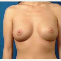 25-34 year old woman treated with Breast Implants after 3326762