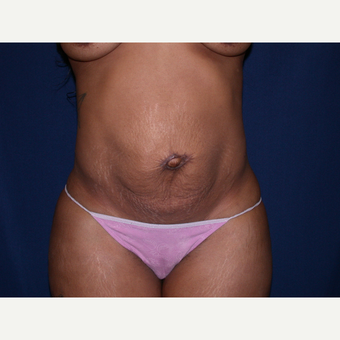 35-44 year old man treated with Tummy Tuck before 3565367