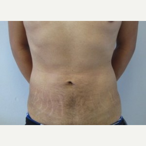 Liposuction after 3094166