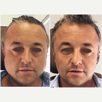 45-54 year old man treated with Botox before 3398345