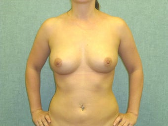 Fat transfer to the Breast - Natural Breast Augmentation after 435201