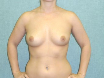 Fat transfer to the Breast - Natural Breast Augmentation before 435201