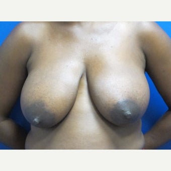 35-44 year old woman treated with Breast Lift before 1863912