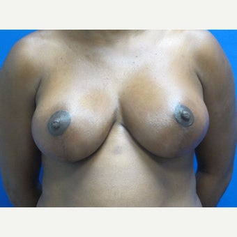 35-44 year old woman treated with Breast Lift after 1863912