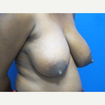 35-44 year old woman treated with Breast Lift 1863912