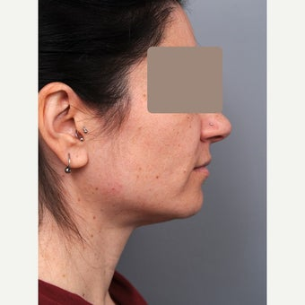 25-34 year old treated with Chin Liposuction