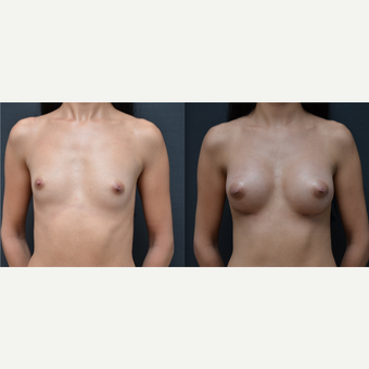 18-24 year old woman treated with Breast Augmentation before 3238722
