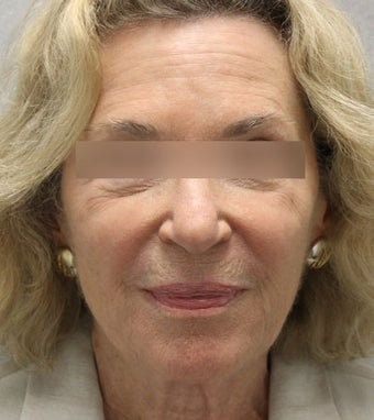 69 year old patient treated with Voluma  after 1439996