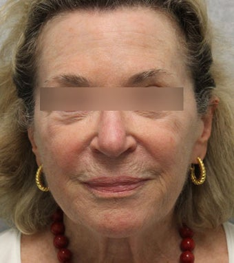 69 year old patient treated with Voluma  before 1439996