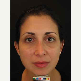 Woman treated with Melasma Treatment after 1909040