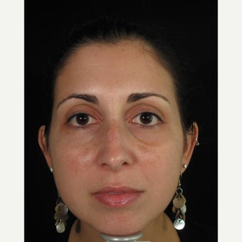 Woman treated with Melasma Treatment before 1909040