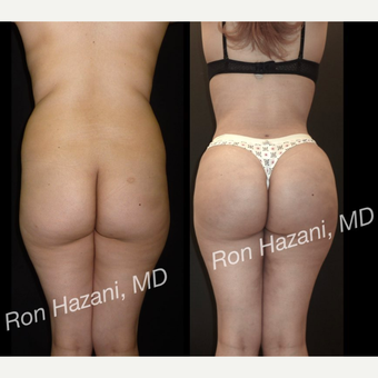 18-24 year old woman treated with Brazilian Butt Lift before 3680275