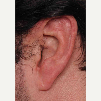 Large Ear Reduction Surgery before 3786644