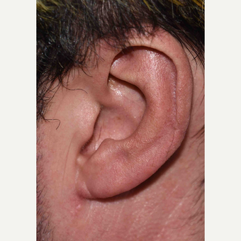 Large Ear Reduction Surgery after 3786644