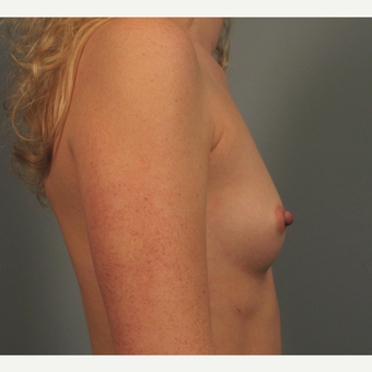 25-34 year old woman treated with Breast Implants before 3344457
