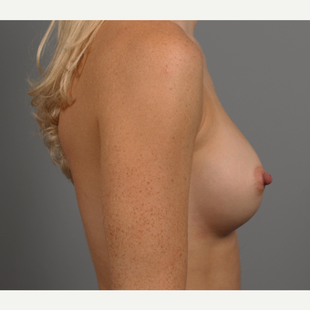 25-34 year old woman treated with Breast Implants after 3344457