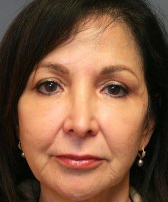 55-64 year old woman treated with Sculptra, Voluma, and Botox after 2025415
