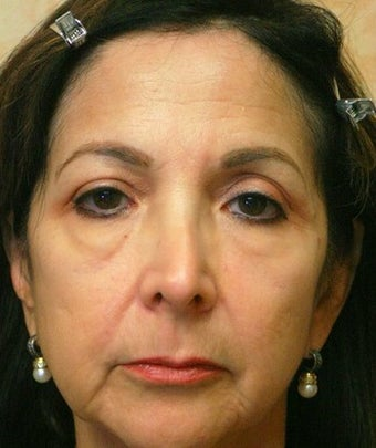 55-64 year old woman treated with Sculptra, Voluma, and Botox before 2025415