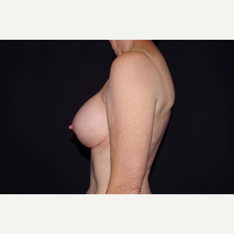 55-64 year old woman treated with Breast Implant Revision after 3280588