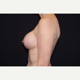 55-64 year old woman treated with Breast Implant Revision before 3280588