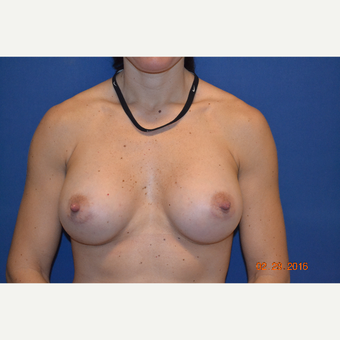 35-44 year old woman treated with Breast Augmentation after 3664009